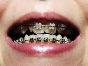 Zahnspange: Kein Zuschuss bei Hartz IV