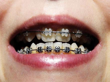 Zahnspange offener Mund